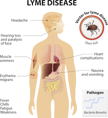 No Autism Is Not Caused By Lyme Disease >> Lyme Disease And The Autism Spectrum The Autism Doctor Com